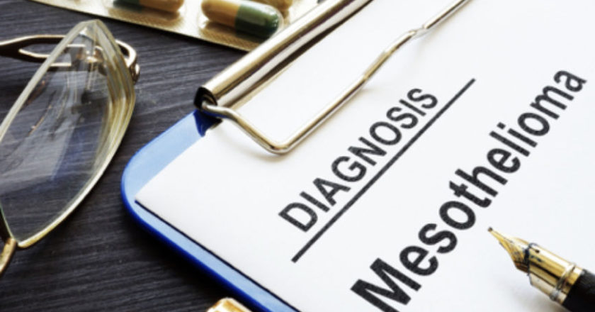 Is Mesothelioma Fatal, asbestos and mesothelioma, How Fast Does Mesothelioma Progress, Access to Mesothelioma Treatment, Connection Between Asbestos and Mesothelioma